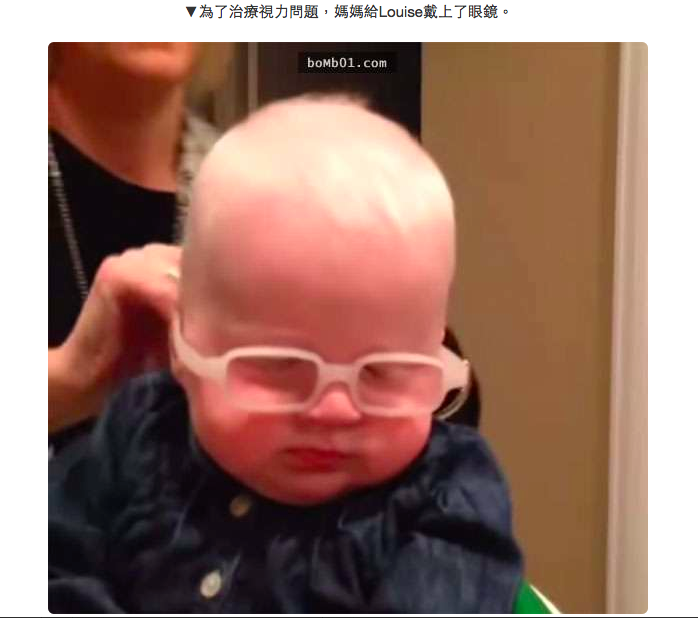 Albinism in Infants