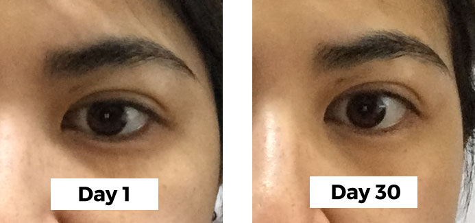 My 30 day Resultime 5 Expertise Eye Cream Test Comparison