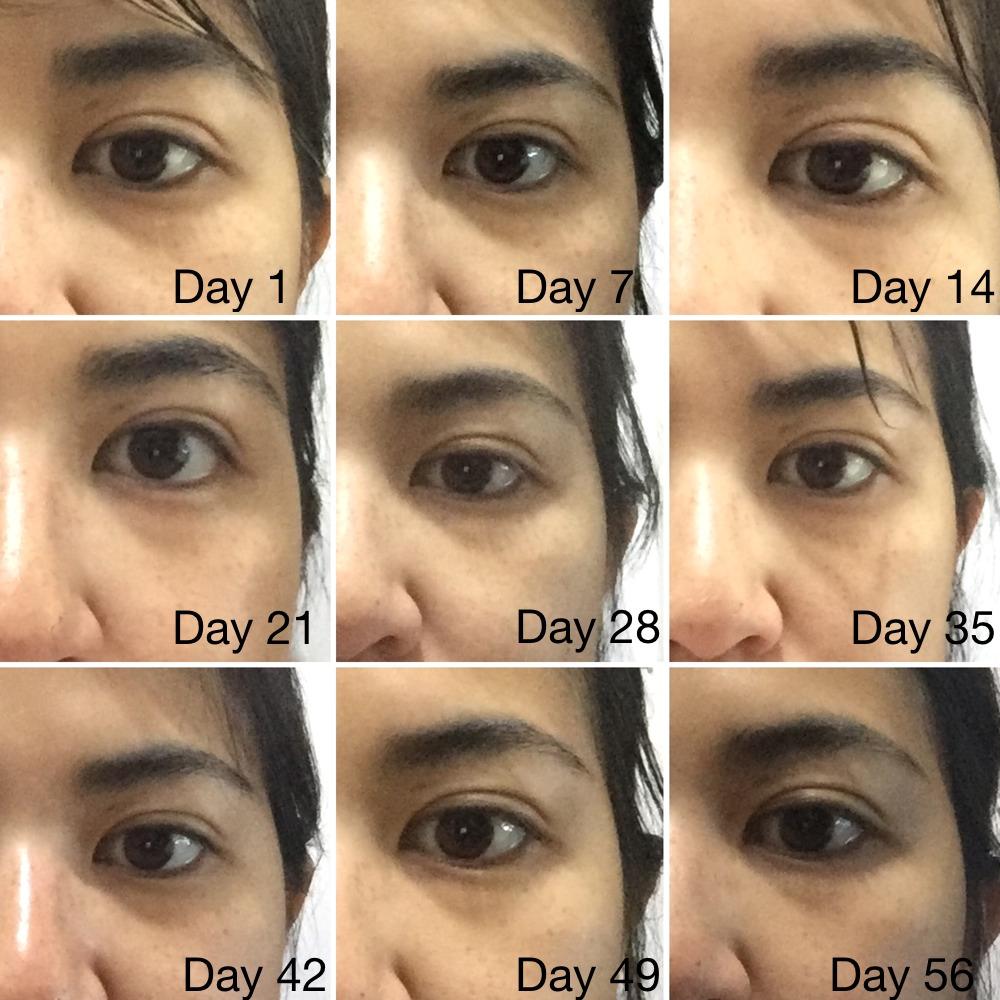 Dermalogica Total Eye Care Cream Review