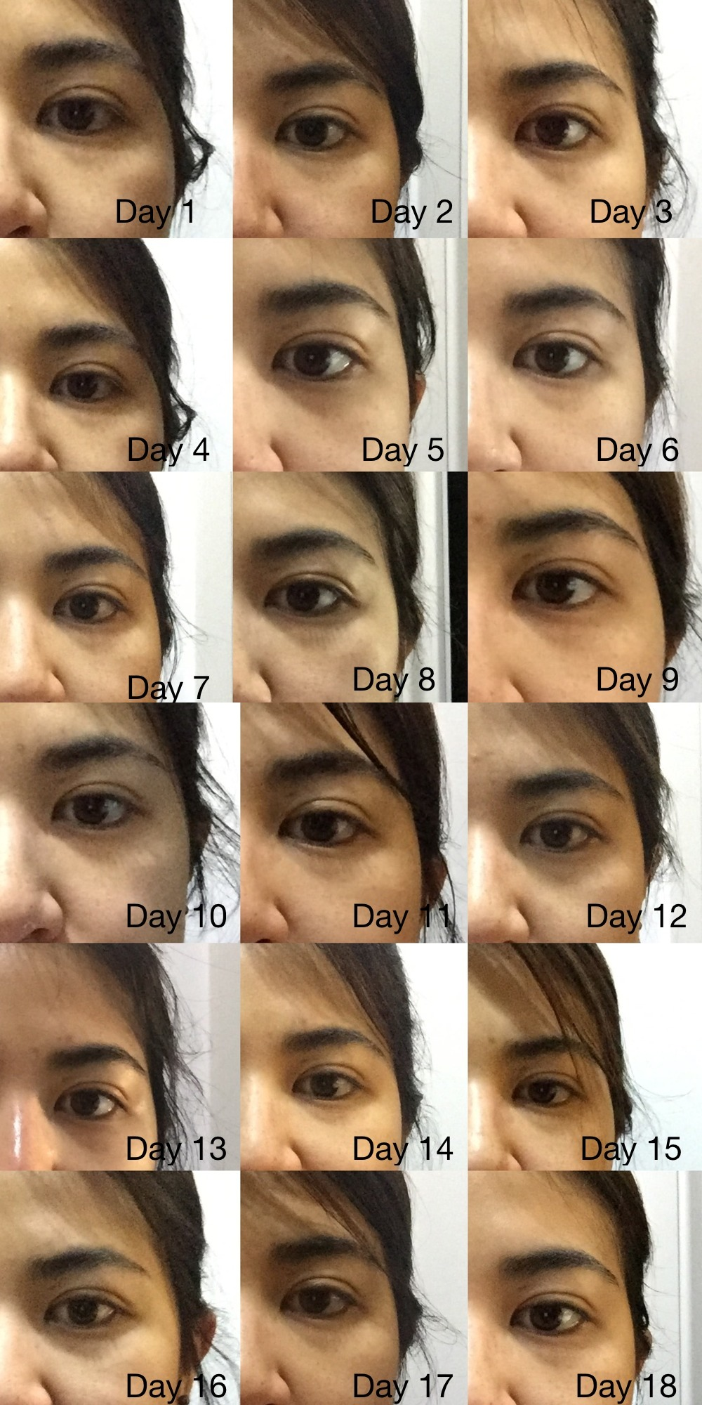 Eyecream Test from Day 1 - 18